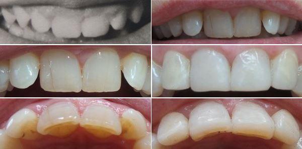 Zahn Bröckelt