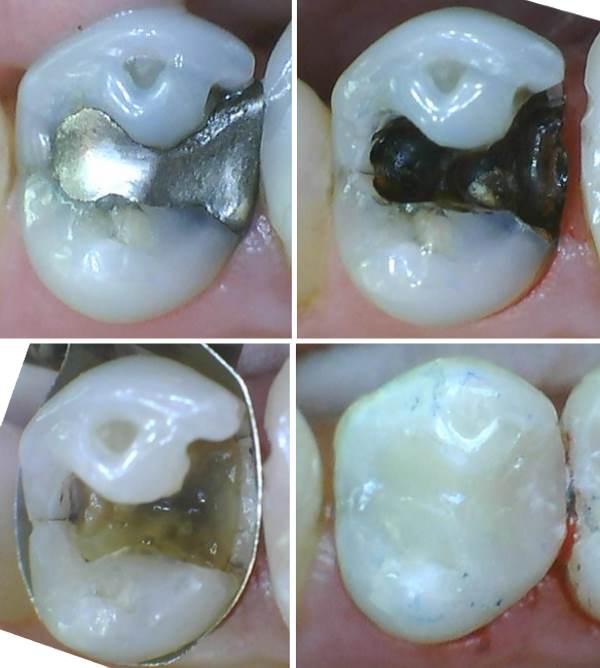 Zahn grau geworden