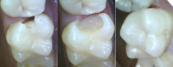 Grau karies zahn Was hilft