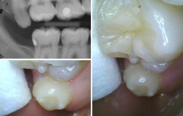 Graue verfärbung zahn Zahnverfärbung nach